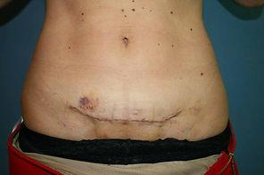 cicatrice cicatrici post-chirurgiche.jpe