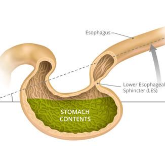Medcline-Stomach-1@2x.jpg