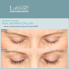 Latisse Before-After