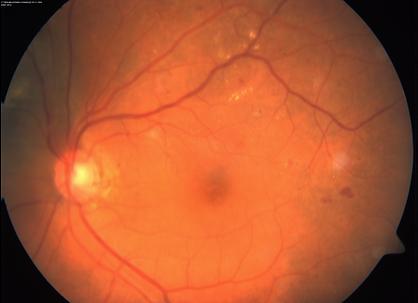 retinopatia diabetica merida oftamologo