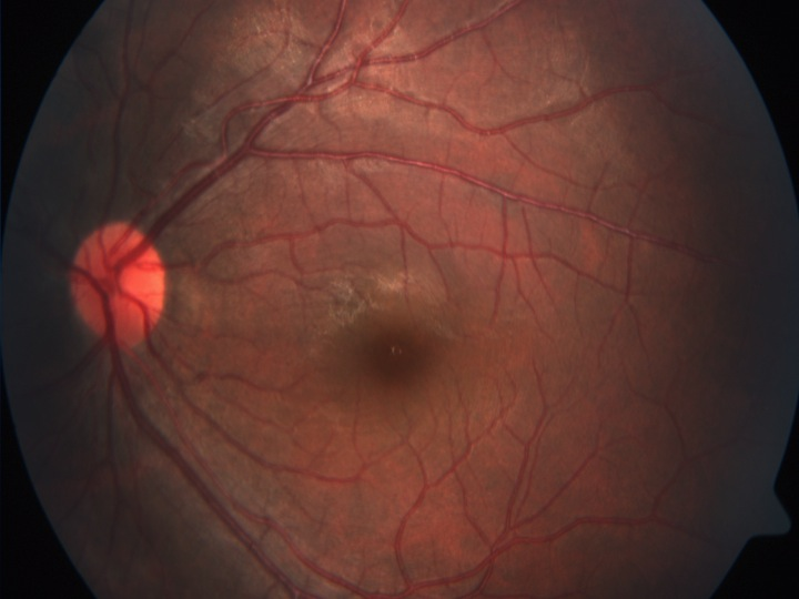 retina merida