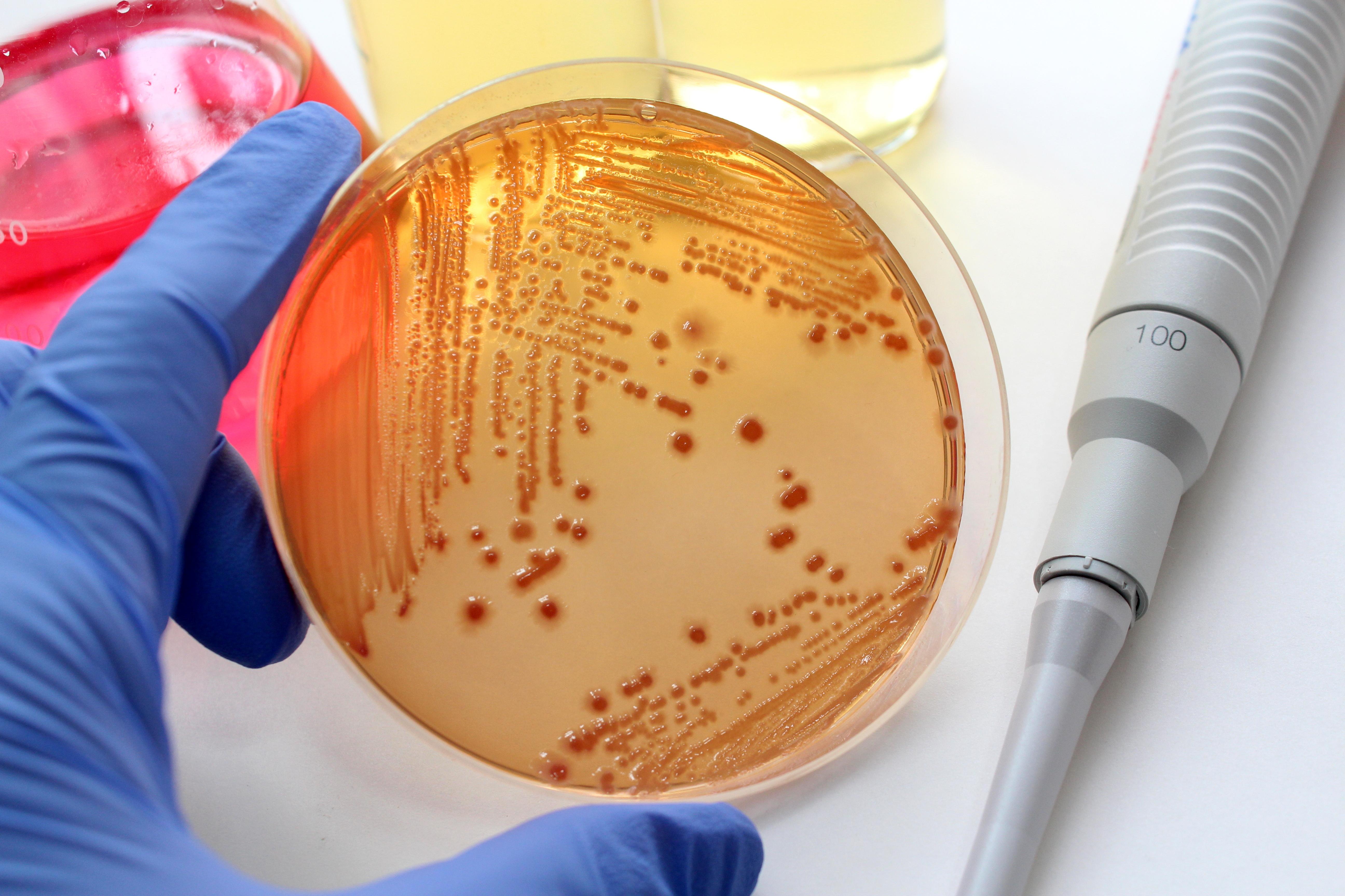 Microbiología Cervecera