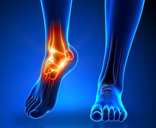 Footand Ankle Pain