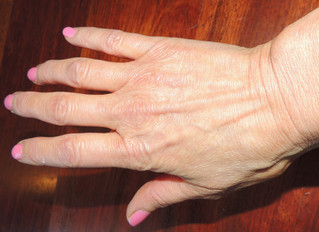 Do You WANT Your Hands to Look Older Than Your Face?