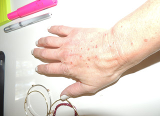 Look At What Happened to MY HANDS!