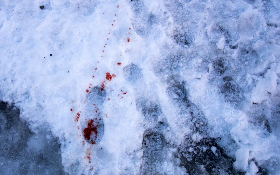 Bloody foot.jpg