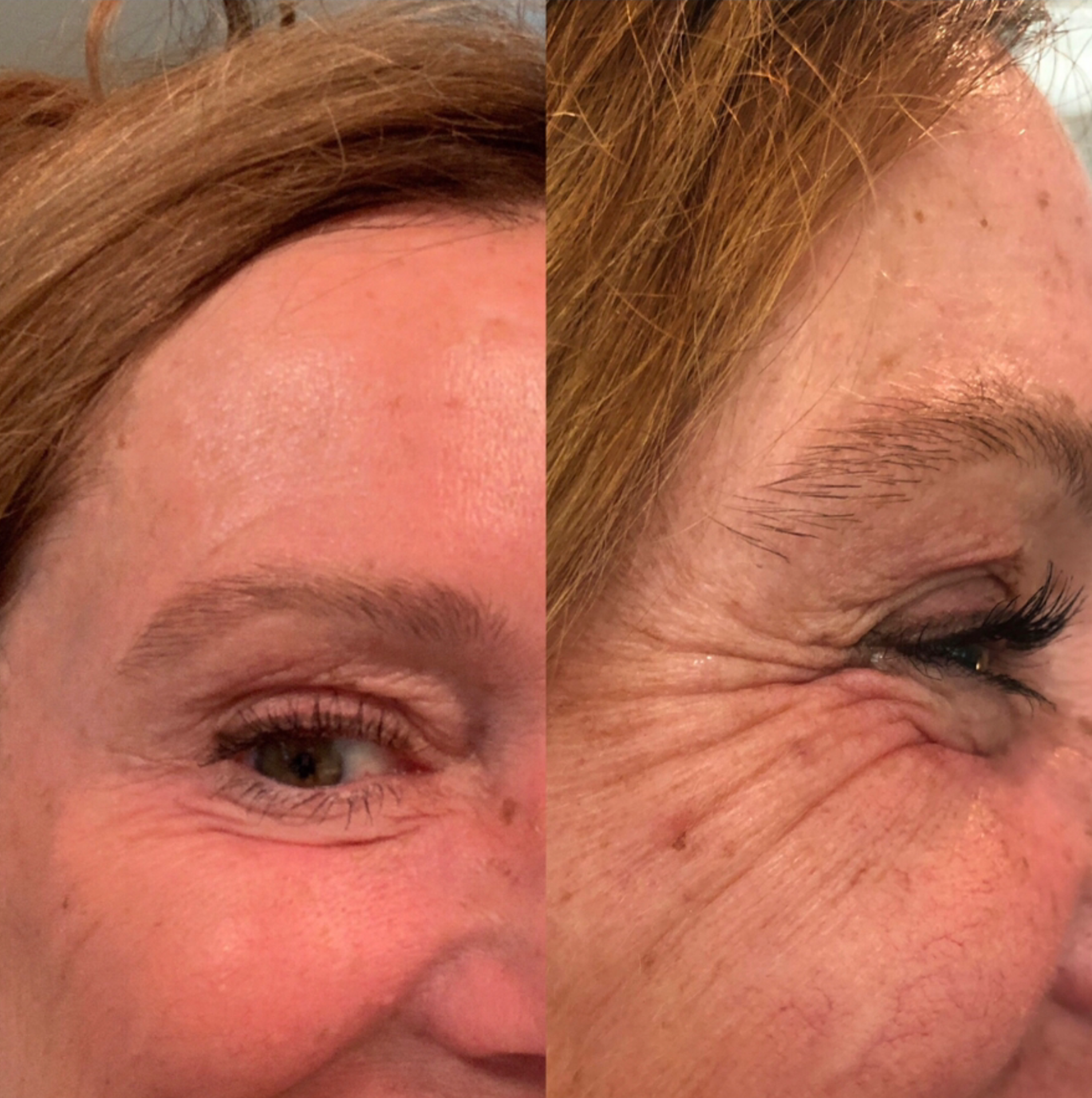 Crows Feet treated with Botox