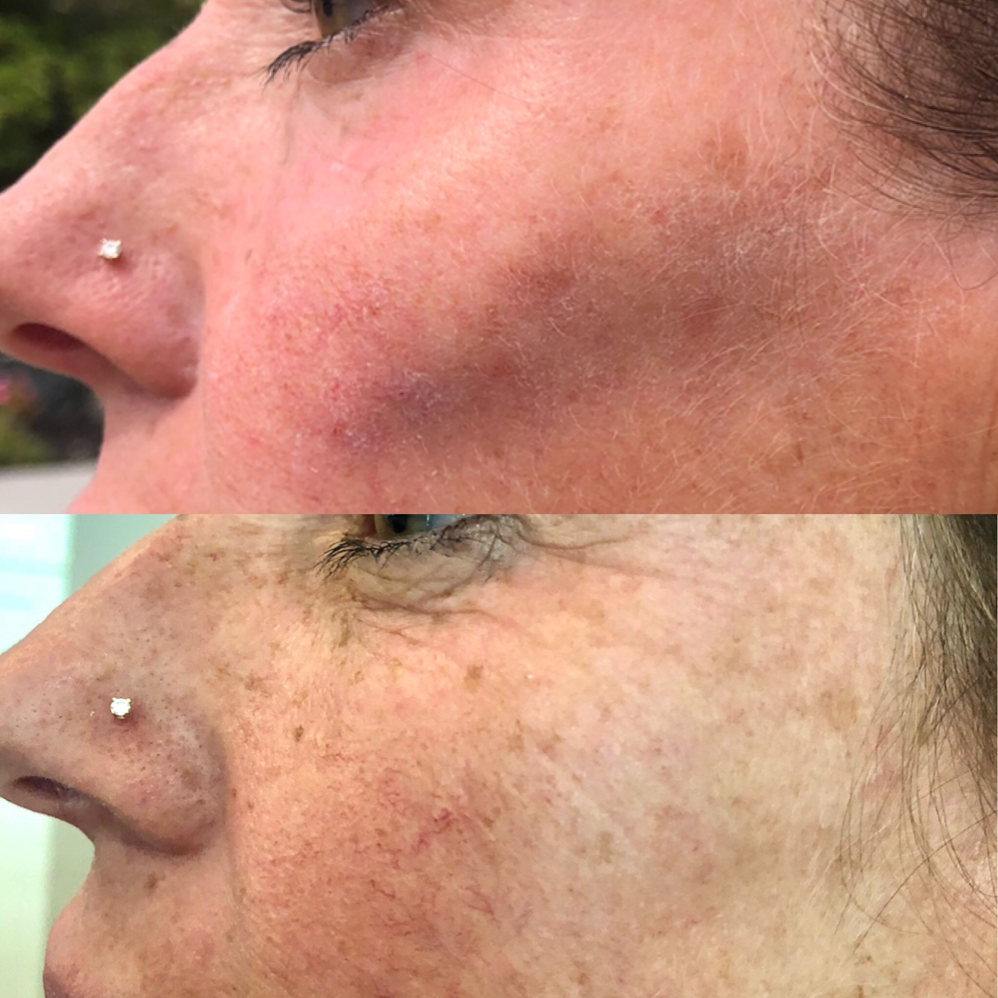 Cheek filler with Voluma