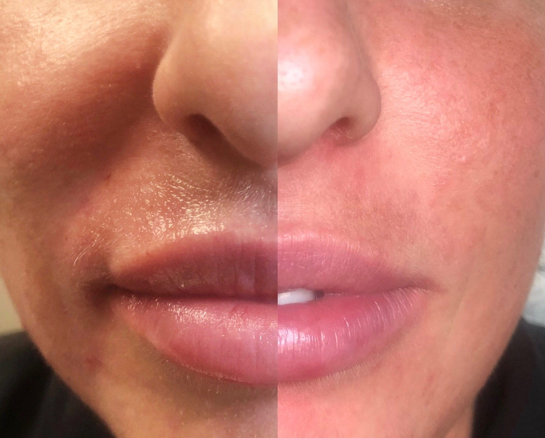 Balancing the top lip w/ the bottom