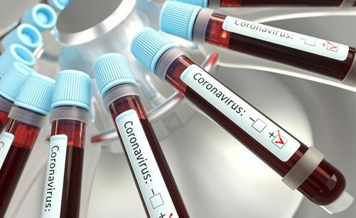 coronavirus-blood-tubes.jpg