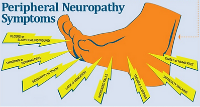 peripheral neuropathy.PNG