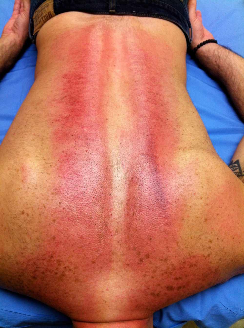 Gua Sha for pain and injury