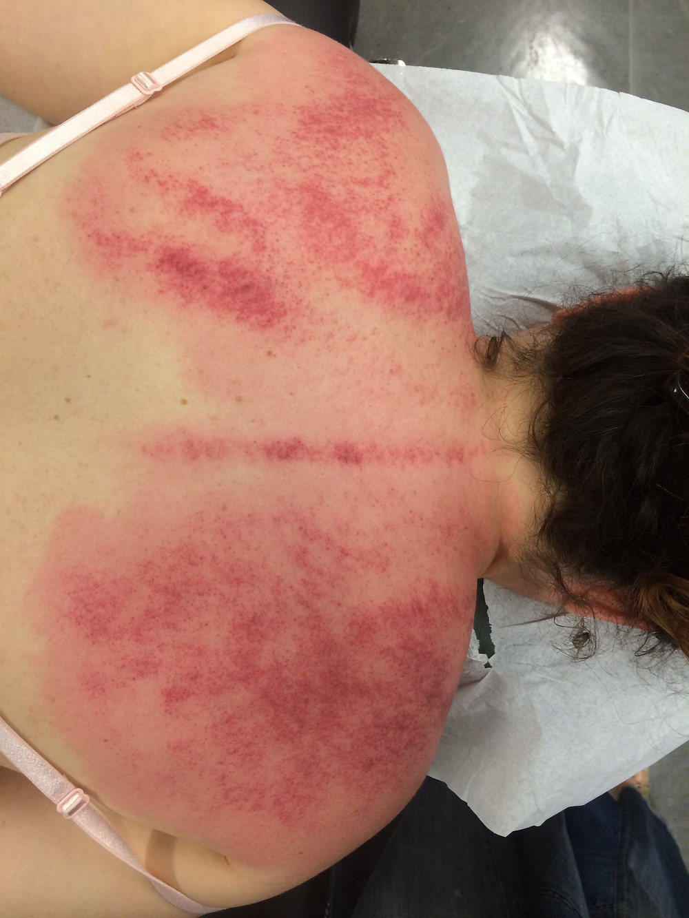Gua Sha for upper back and shoulder pain