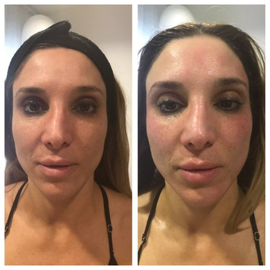 WOW Factor Facial B&A 2.jpg