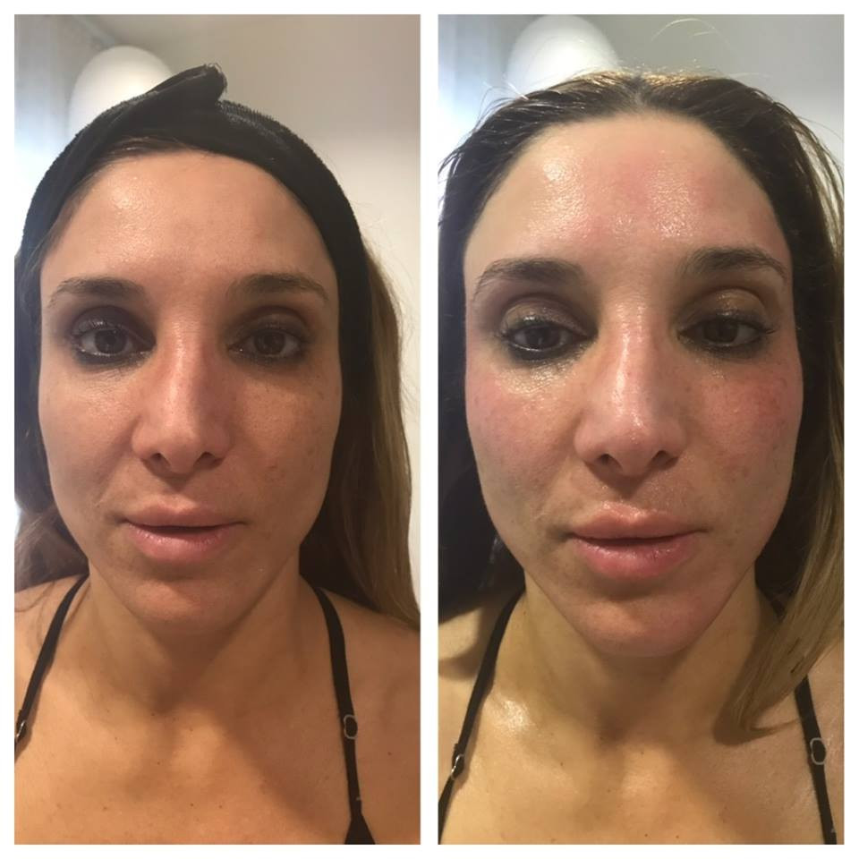 WOW Factor Facial B&A 2.jpg