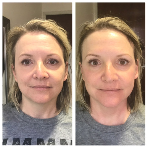 WOW Factor Facial B&A.JPG