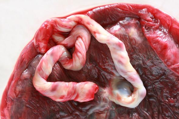 placenta heart1.jpg