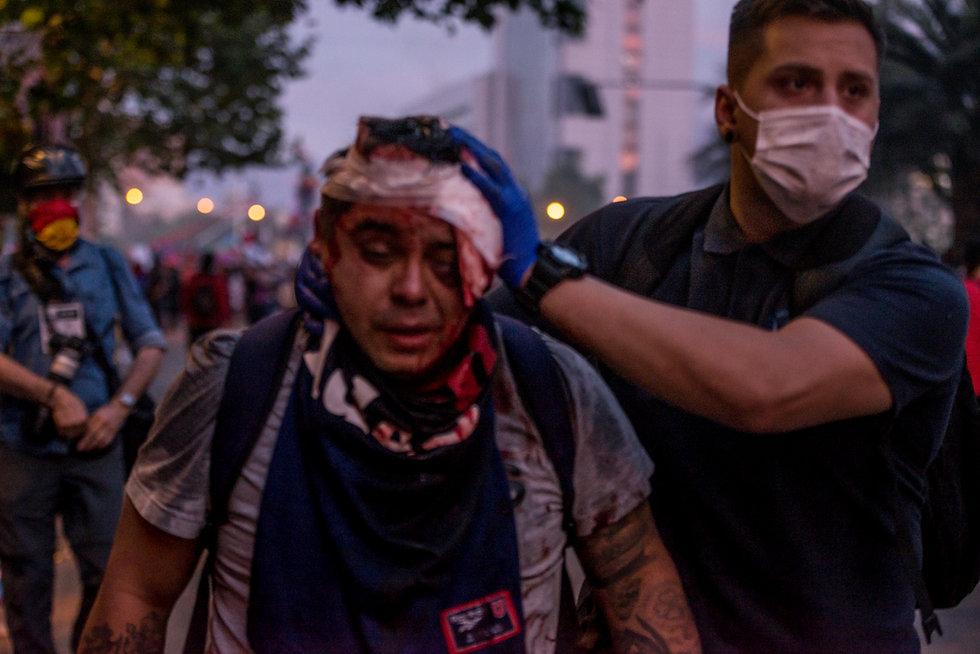 heridos estallido social chile
