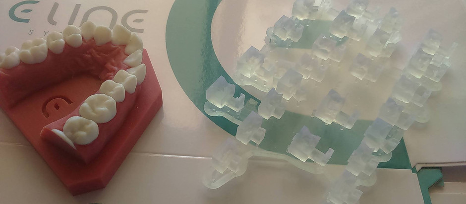 A new innovating Algorithm  based on 40 years of Orthodontic concept!