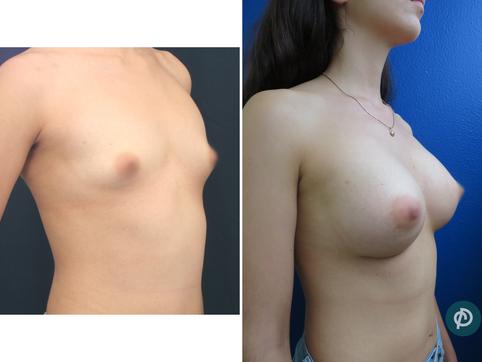 Implantes Anatómicos