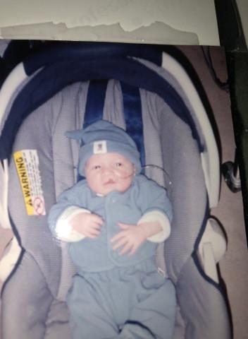 cleft lip; baby; newborn;