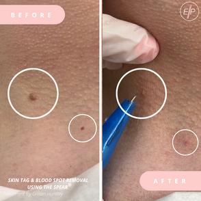 Skin Tag & Blood Spot.png
