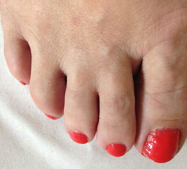 Before Web Toe correction