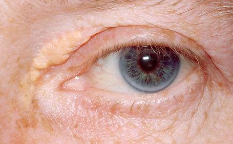 Image of xanthelasma around the eye