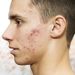 Image of acne on the skin