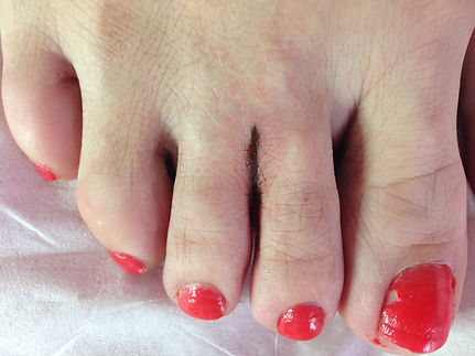 After web toe correction
