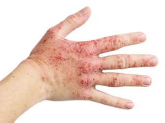 The problem with many people - eczema on