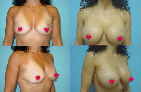 Breast Augmentation 16.1 copy.jpg