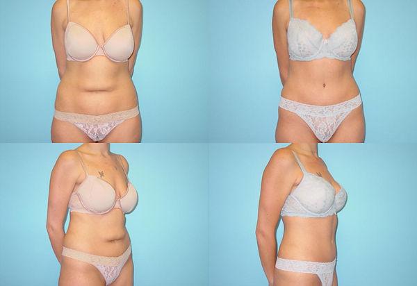 Abdominoplasty 10.1.jpg