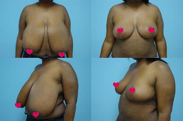 Breast Reduction 6.1.jpg