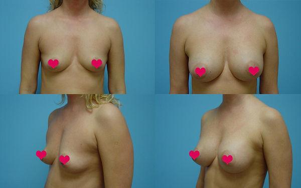 Breast Augmentation 10.1.jpg