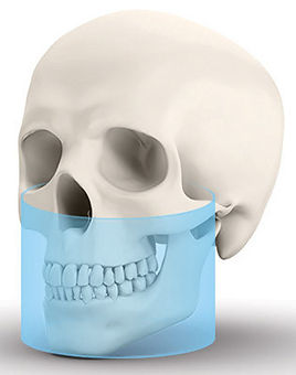 double jaw cbct.jpg
