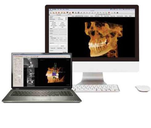 invivo-5-47-and-invivo-5-for-mac_imaging