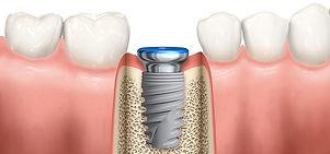 implantinbone.jpg