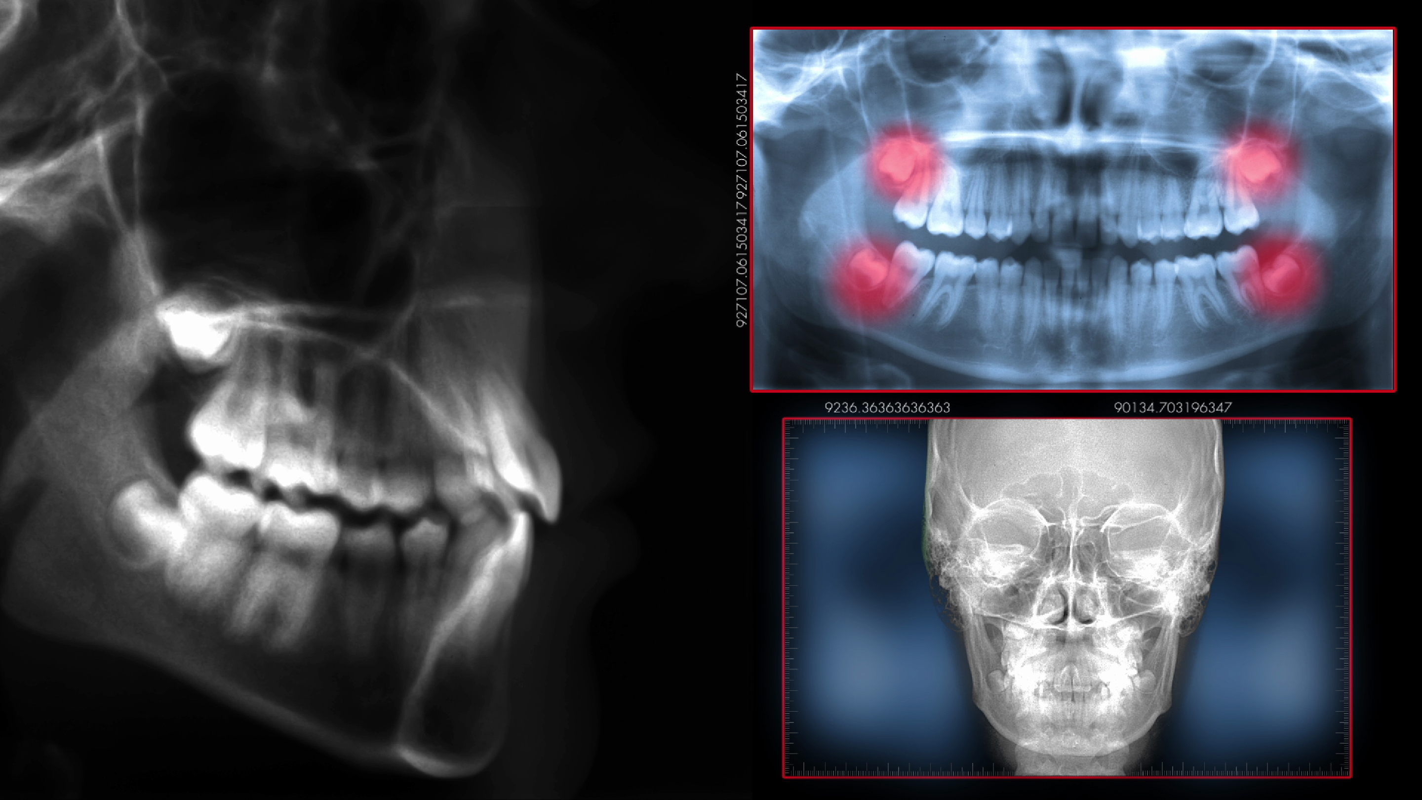 dental scan, radiography