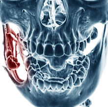 Ct scan (computed tomography) of dental mandible, case of keratocystic odontogenic tumor (right sid