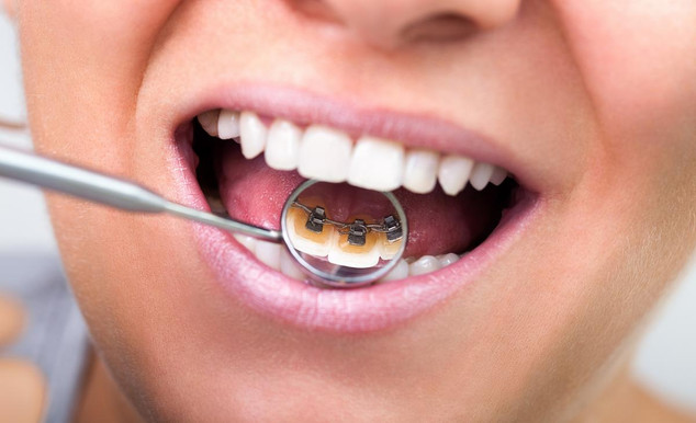 What are Lingual Braces?