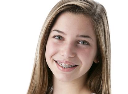 Teens Braces | Dr Kostas | Orthodontist in Dublin 2