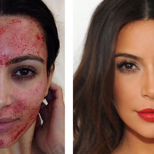 PRP Precise Facial Look & Learn