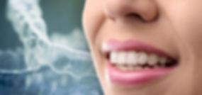 unionville-orthodontics-teeth-Invisalign