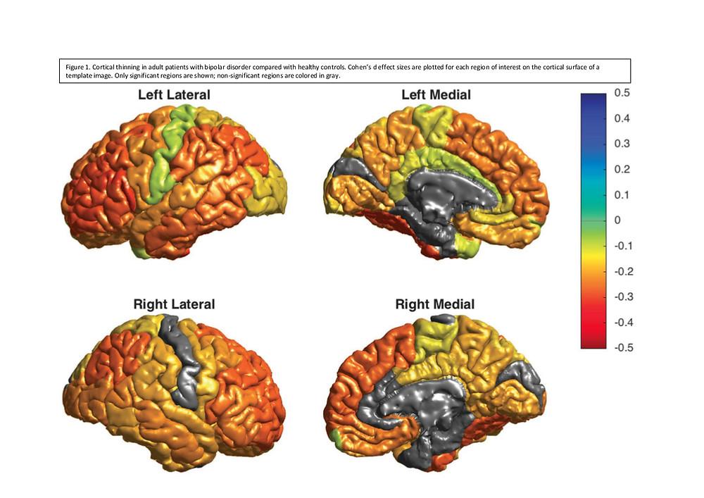 Imagens del cerebro en trastorno bipolar
