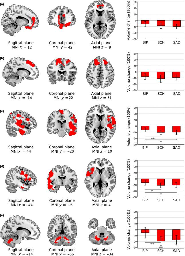 Bipolar Esquizofrenia