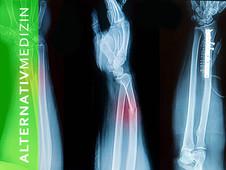Komplikationen bei der distalen Radiusfraktur - Erhöhung der Knochendichte - Heilpilze
