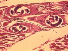 Parasiteninfektion - Trichinose