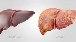 15 Sinais que podem revelar que você tem um Figado gordo