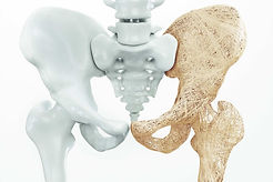 Knogleskørhed-osteoporose-og-CBD-olie.jp